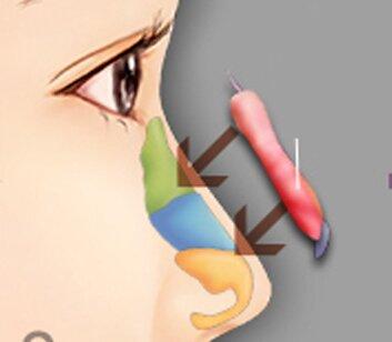 Nâng-mũi-bọc-sụn-so-sánh-1