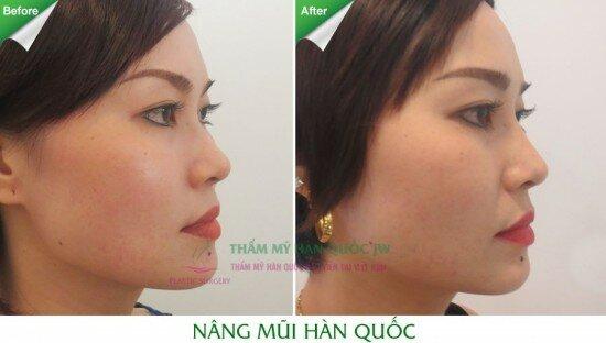 nang-mui-han-quoc (1)