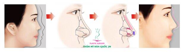 Nâng mũi bằng chỉ có tốt không - Mô phỏng
