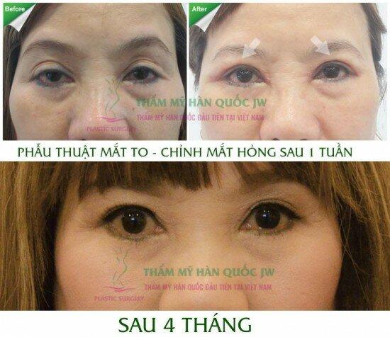 Tuyethoa_chinh mat hong_sau 4 thang OCMBO