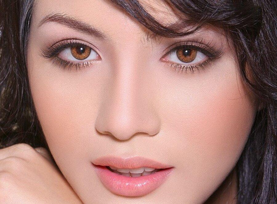 phẫu-thuật-midface-ảnh-minh-họa-1