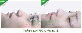 Nang_mui_sline_Phan_Hong_Bao_Truc