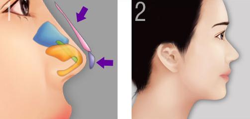 Hình ảnh mô phỏng dáng mũi