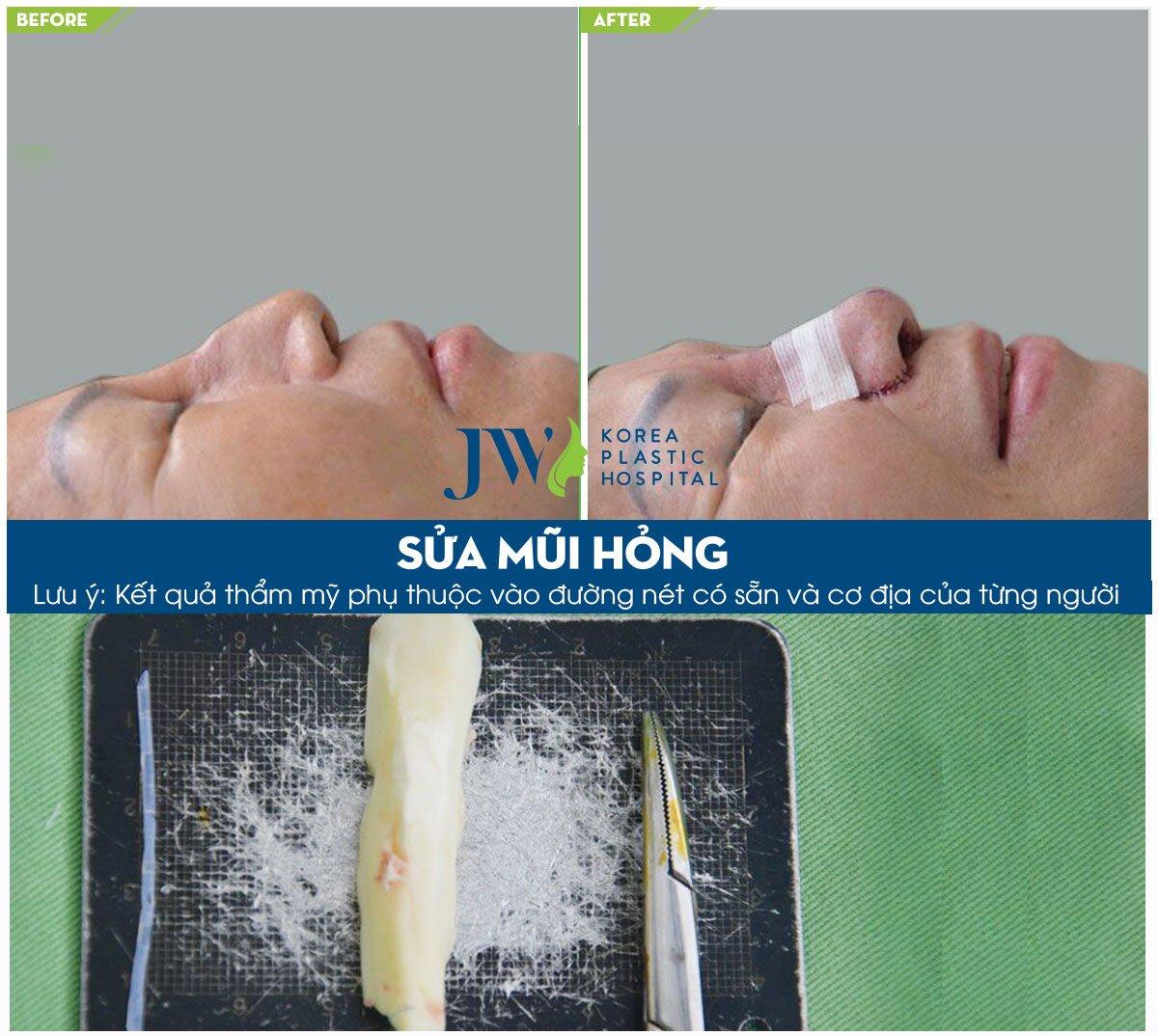 mũi biến chứng