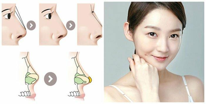 Làm thế nào để nâng mũi tự nhiên-hình 3